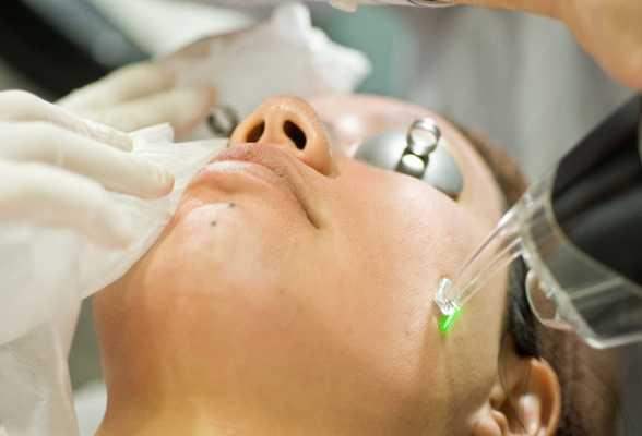 Resultado de imagem para fototerapia tratamento acne